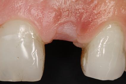 Geschlossene Einheilung vor Freilegung des Implantats [©Jose Magon, fotolia.com]