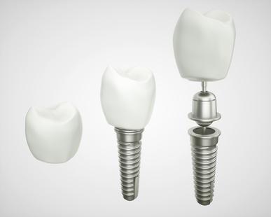 Mehrteiliges Implantat mit Keramikkrone [©crevis, fotolia.com]