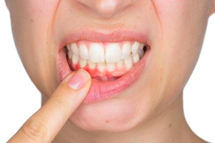 Zahnfleischentzündung im Unterkiefer [©Stefano Garau, fotolia.com]
