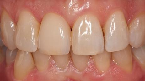 Einzelzahnlücke versorgt mit implantatgetragener Krone [©dentalfoto, fotolia.com]