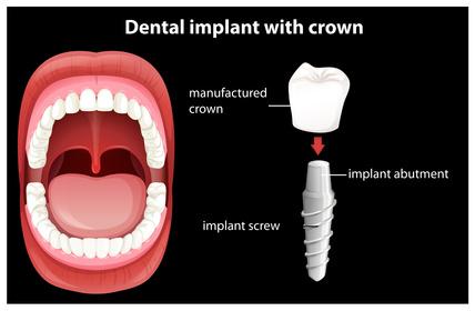 Einteiliges Implantat mit Keramikkrone [©blueringmedia, fotolia.com]