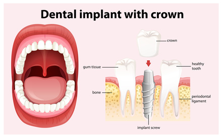 offener Einheilung des einteiligen Implantats wird es durch die Keramikkrone ergänzt. [©blueringmedia, fotolia.com]