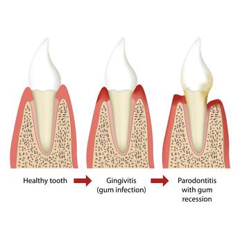 Entwicklung einer Parodontitis [©bilderzwerg, fotolia.com]