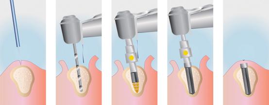 Implantationsverlauf bei einem Einzelimplantat ohne Knochenaufbau [©jcreamer, fotolia.com]